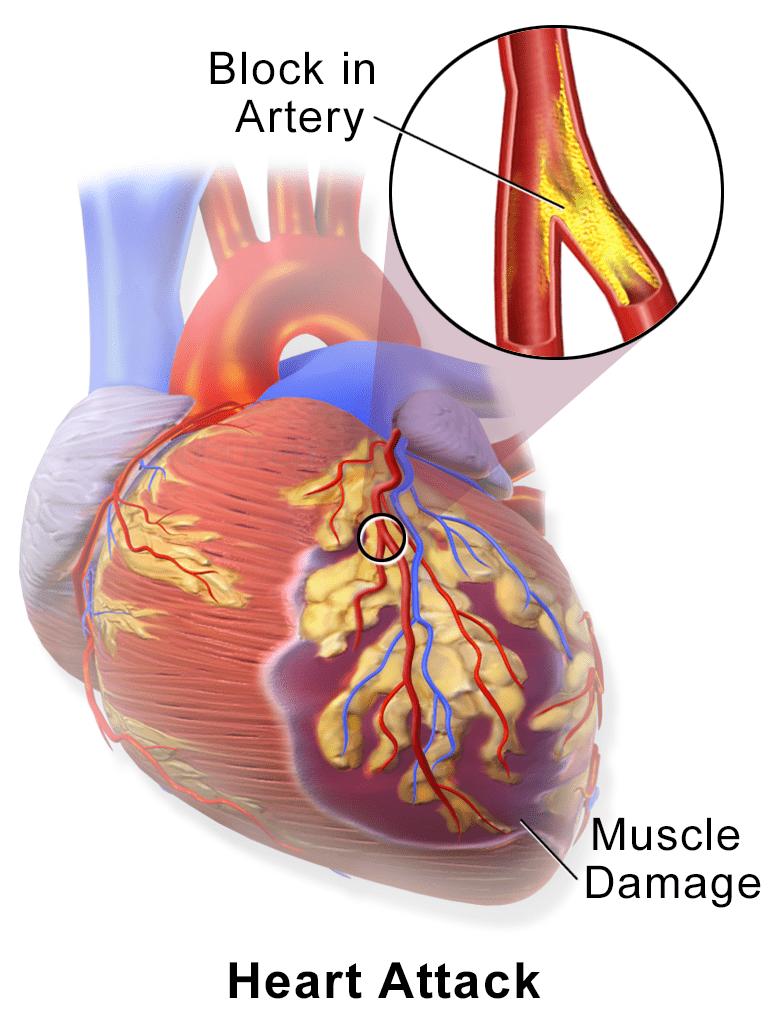 Heart Dsease